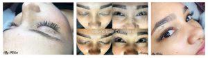 Eyes-banner | aurora spa